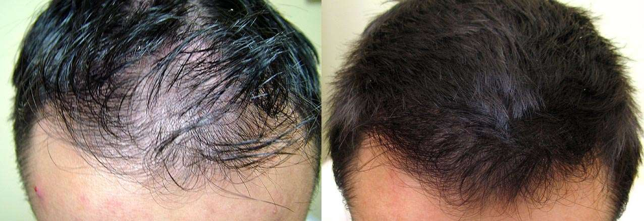 Могут ли от простатита выпадать волосы лечение простатита и аденомы на израильском аппарате термекс