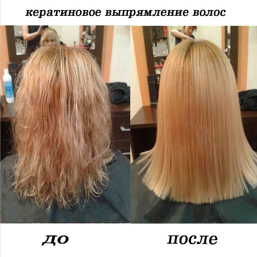 Выпадают волосы после ботокса — что делать и как не допустить выпадения