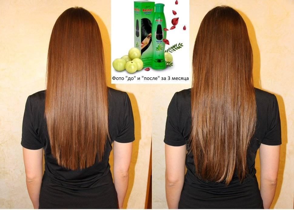 На сколько сантиметров вырастают волосы в месяц