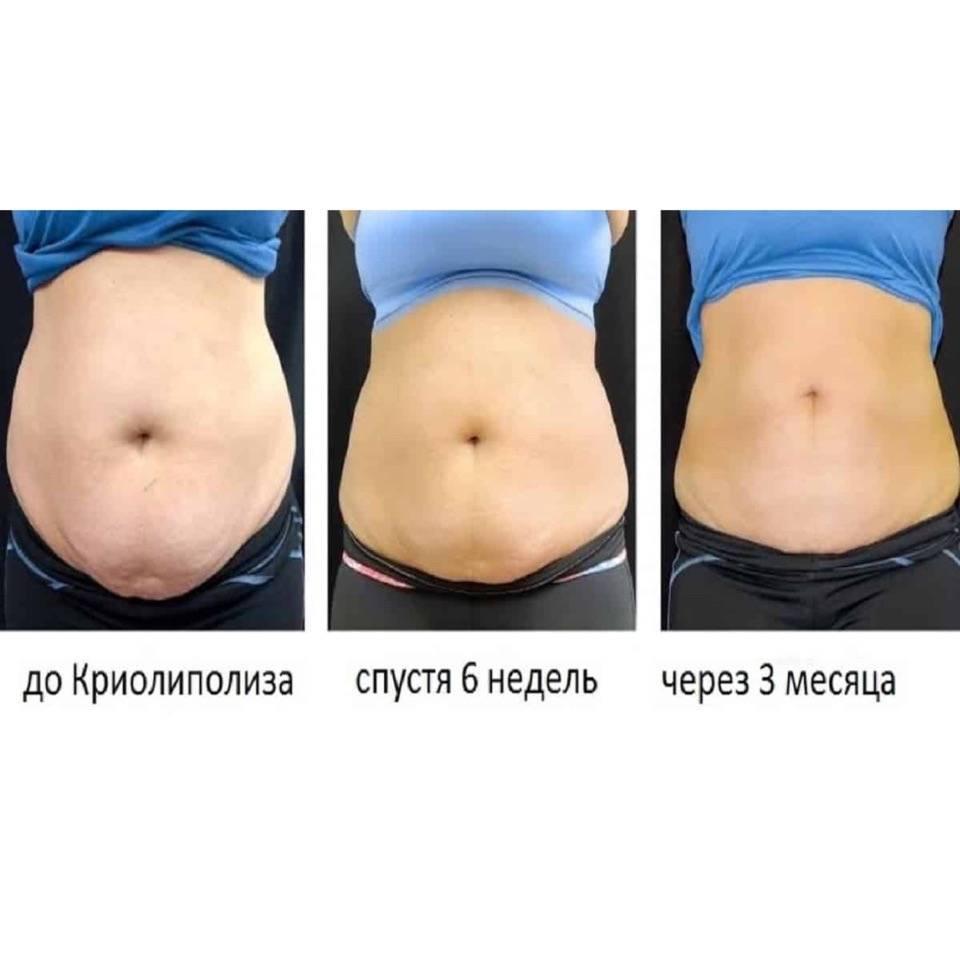 Криолиполиз для похудения: что это, эффективность метода