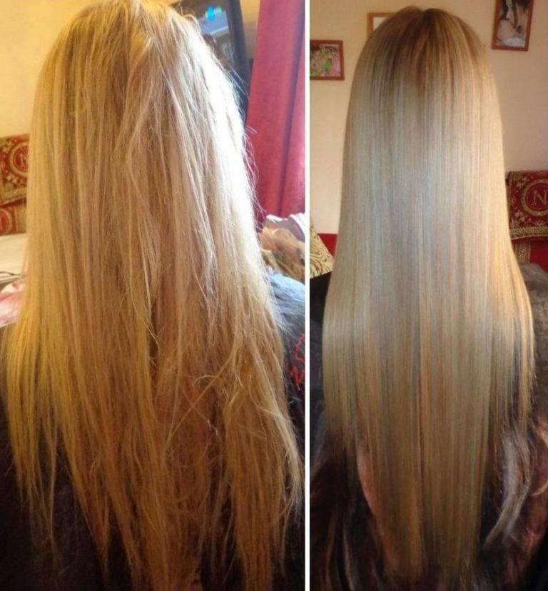 Ботокса на фото до и после: удачные и неудачные последствия избавления от морщин