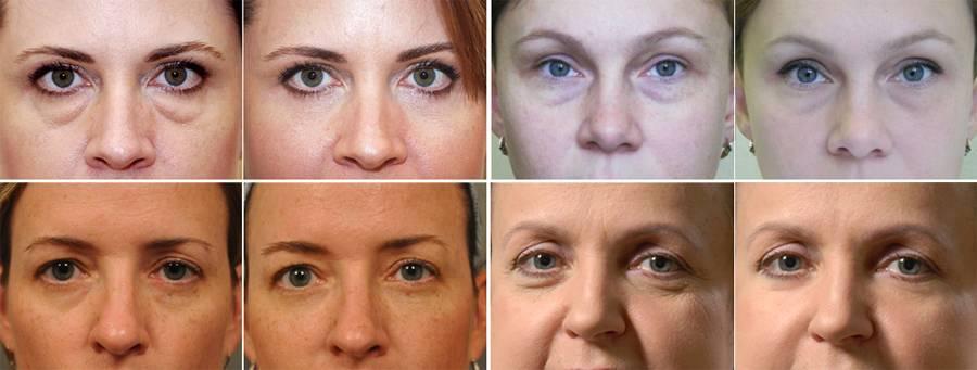 Эффективные упражнения против морщин вокруг глаз