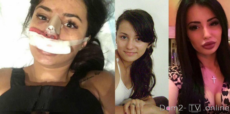 Анастасия лисова и ханна до операций и после   новости чувашии