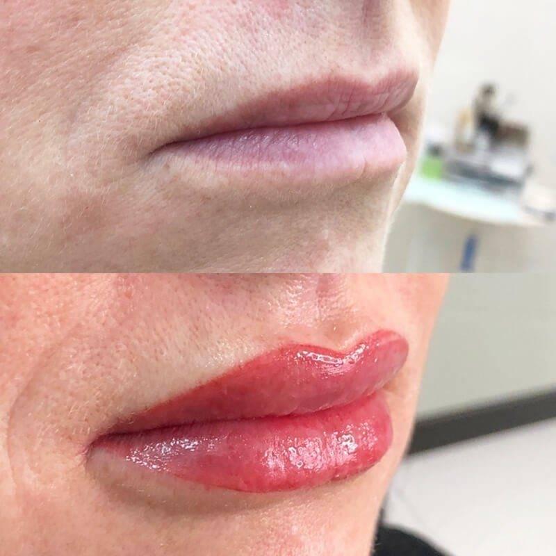 Татуаж губ с отзывами и фото до и после