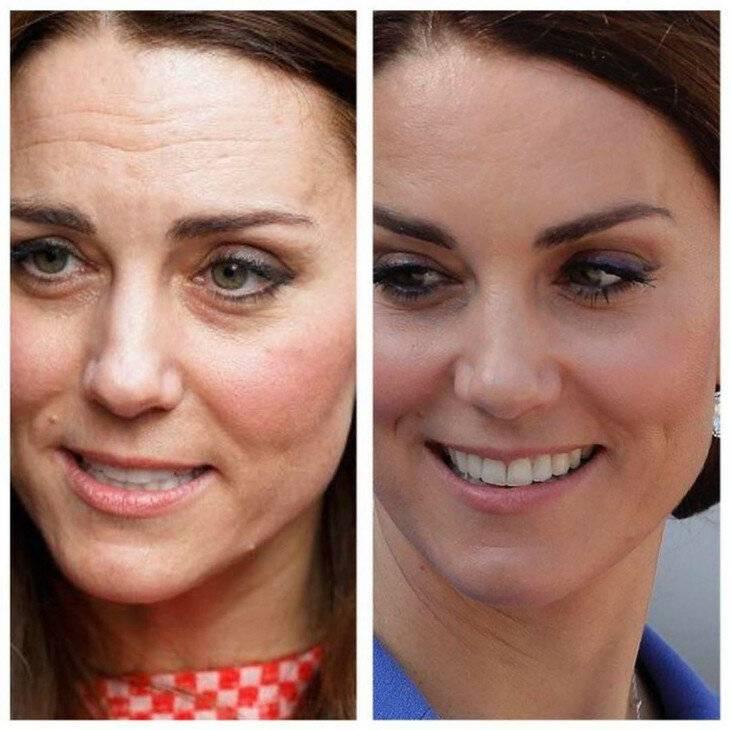 Кейт миддлтон. последние фото, до и после пластики, на пляже, откровенные до замужества. пластические и косметологические процедуры и операции делала, как изменилась