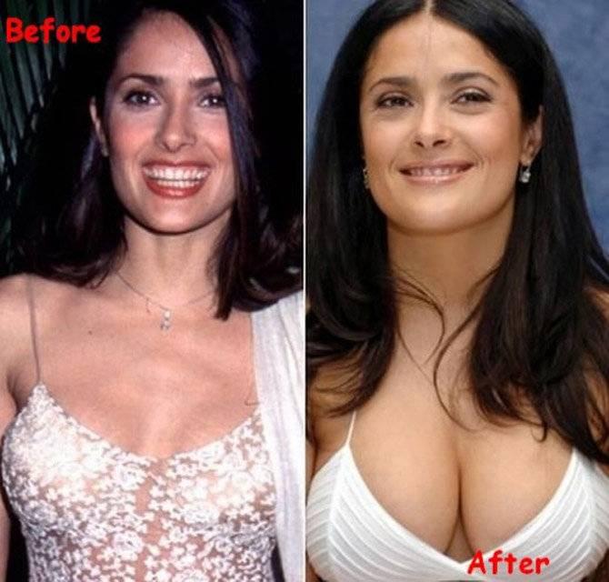 Увеличение груди инъекциями