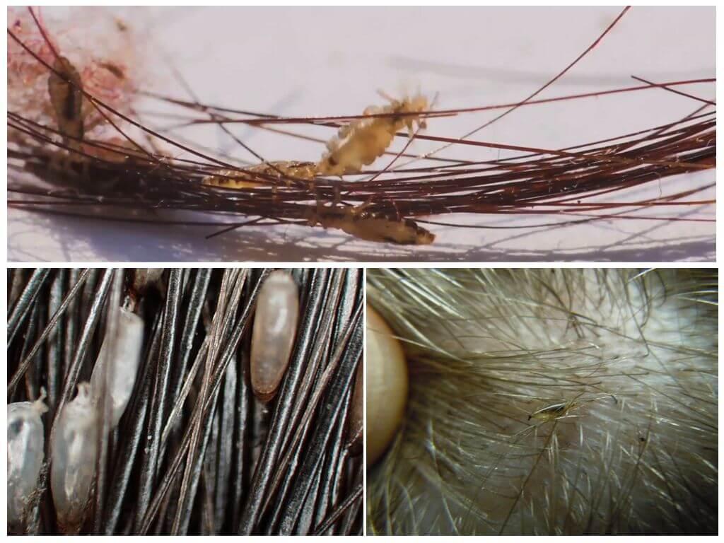 Как избавиться от гнид на волосах: эффективное лечение яиц вшей на голове