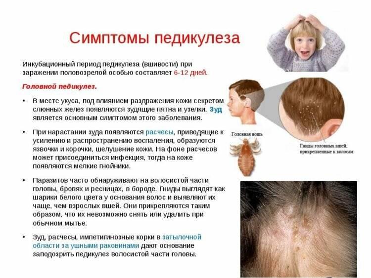 Необходимая профилактика педикулеза у детей: памятка и рекомендованные средства от вшей
