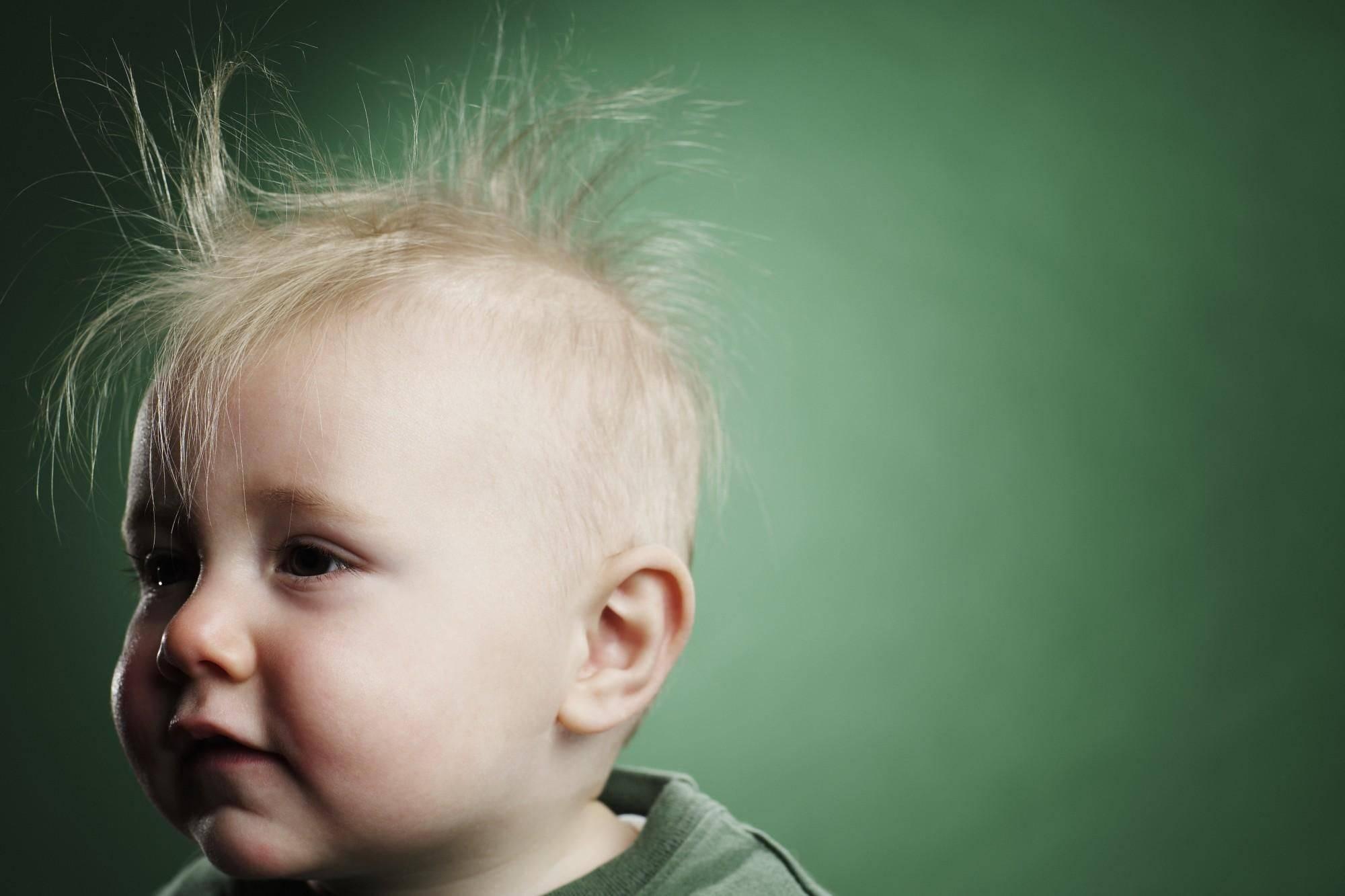 Причины облысения затылка младенца: почему стираются волосы у новорожденного