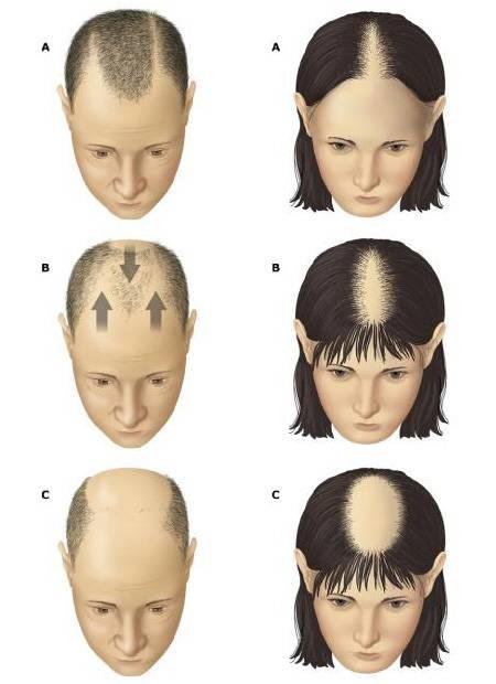 У ребенка плохо растут волосы на голове - что делать и в чем причины