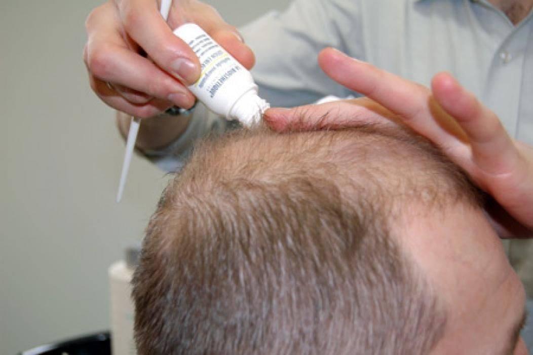 Популярные средства от выпадения волос: выбираем самое эффективное