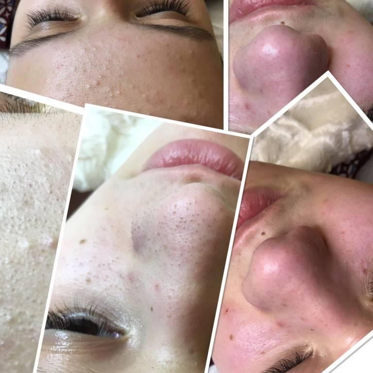 Как выглядит лицо после чистки у косметолога: описание и фото