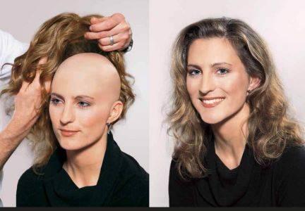 Восстанавливаем волосы после химиотерапии, или все о главной проблеме «химии»