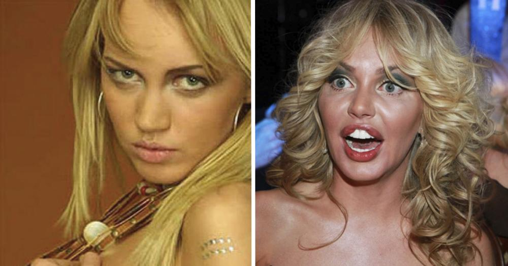Маша малиновская до и после операции: 10 фотографий, которые заставят вас задуматься о том, нужна ли вам пластика - про шоубиз