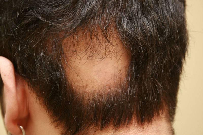 Почему у мужчин выпадают волосы на голове: что делать в этом случае?