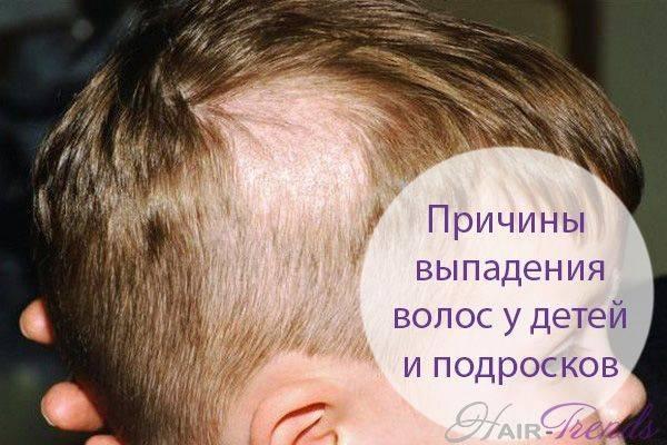 Выпадают волосы у ребенка в 3 года: причины, почему это бывает, и методы лечения