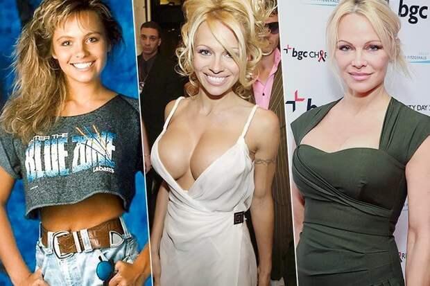 Фото российских знаменитостей и голливудских звезд до и после пластики | qulady