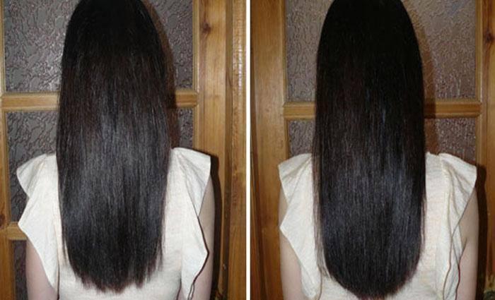 Как быстро растут волосы и можно ли ускорить процесс?