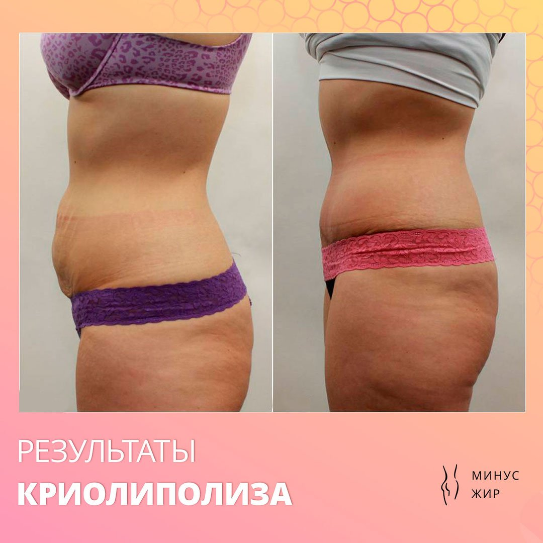 Криолиполиз: описание процедуры, противопоказания, фото до и после — online-diagnos.ru