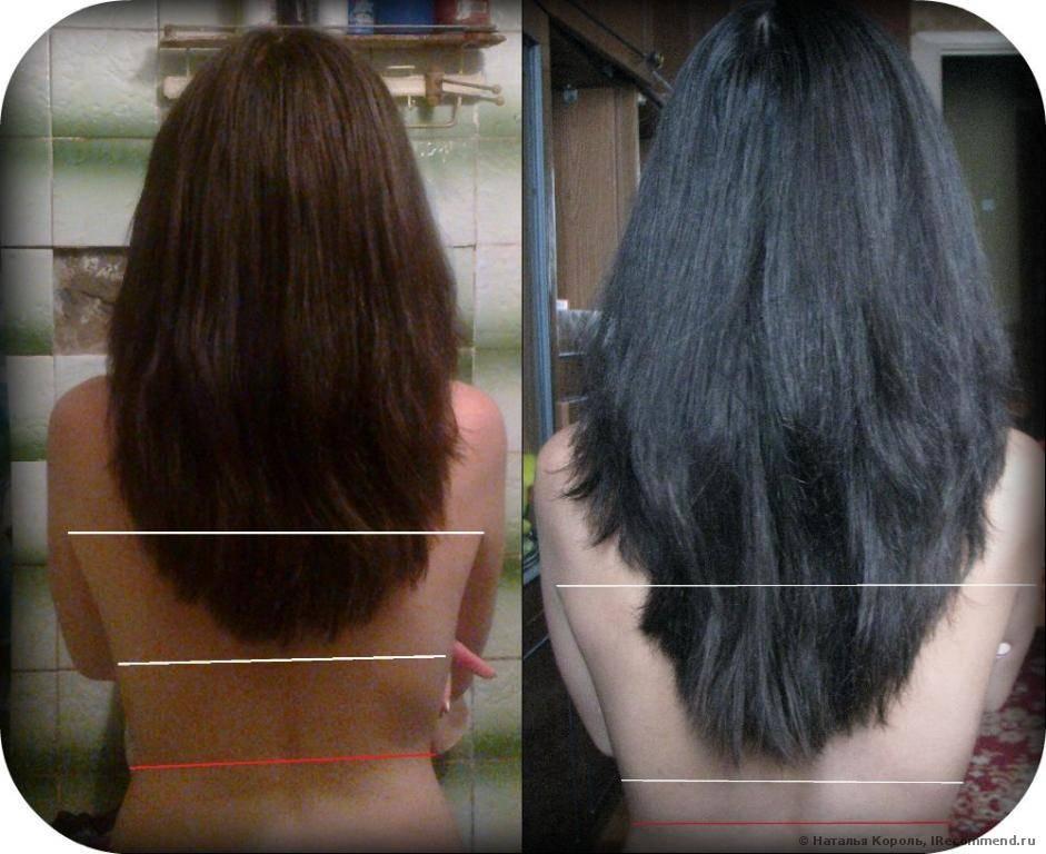 После какой химиотерапии начинают расти волосы. волосы после химиотерапии. при всех ли видах химиотерапии выпадают волосы?