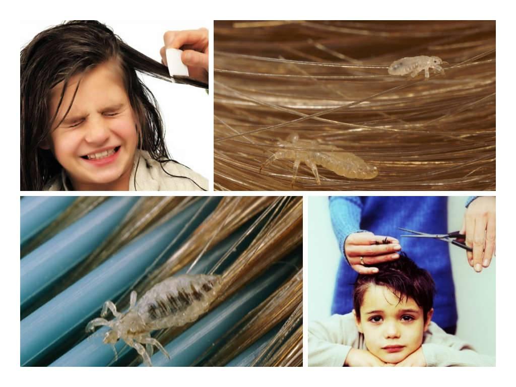 Средство от гнид для детей: шампуни, гели, народные средства - как выбрать самое эффективное?