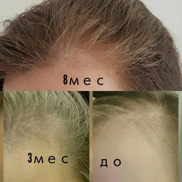 Облысение после химиотерапии: есть ли взаимосвязь, и как восстановить рост волос?