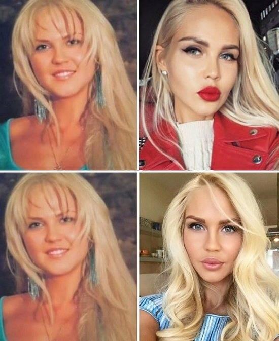 Мария погребняк: до и после пластики, до похудения, без макияжа. как похудела мария погребняк после родов