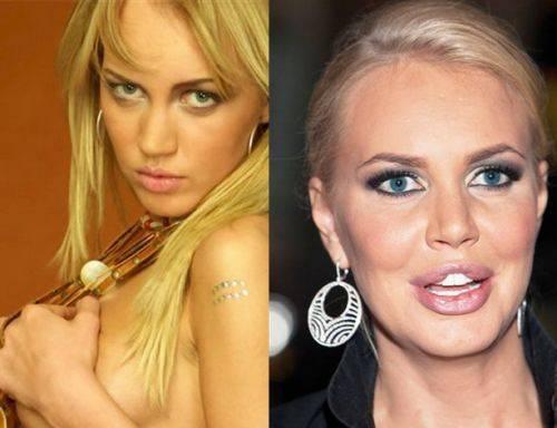 Звезды после неудачной пластики – фото российских знаменитостей до и после пластических операций
