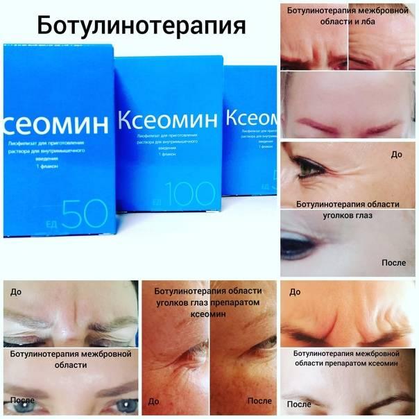 Ксеомин – отзывы косметологов о ботулинотерапии препаратом xeomin®