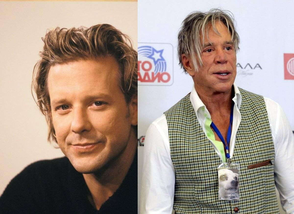 Микки рурк изменился до неузнаваемости. как выглядел актер до и после пластики