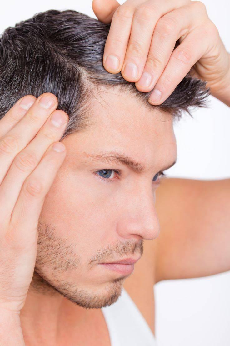 Причины и лечение облысения в области макушки у мужчин