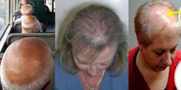 Выпадение волос у детей: причины и лечение у ребенка
