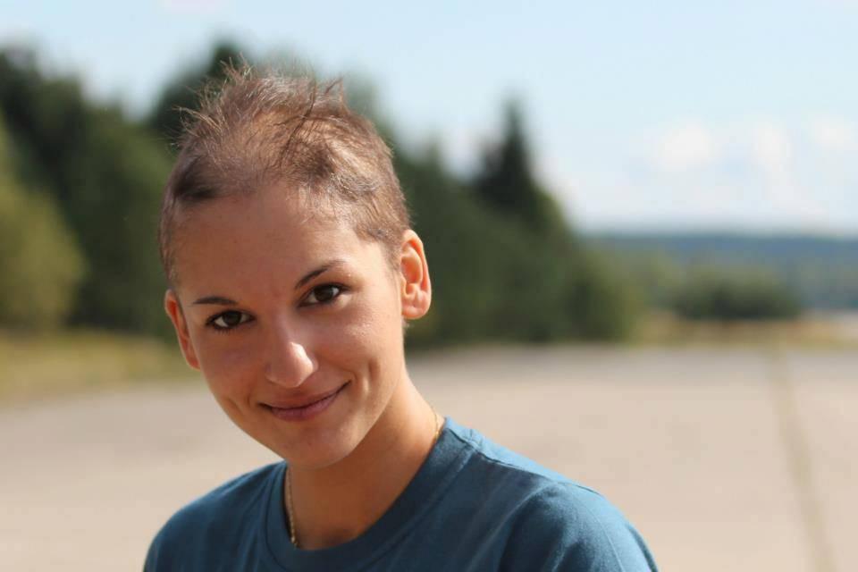 Когда начинают выпадать волосы после химиотерапии?