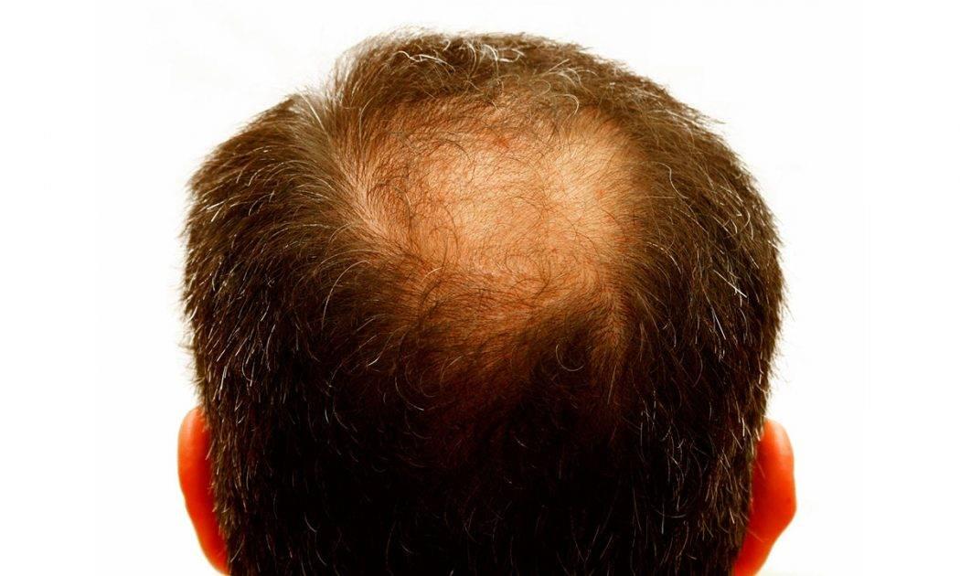 Почему у мужчин в молодом возрасте выпадают волосы и как это остановить?
