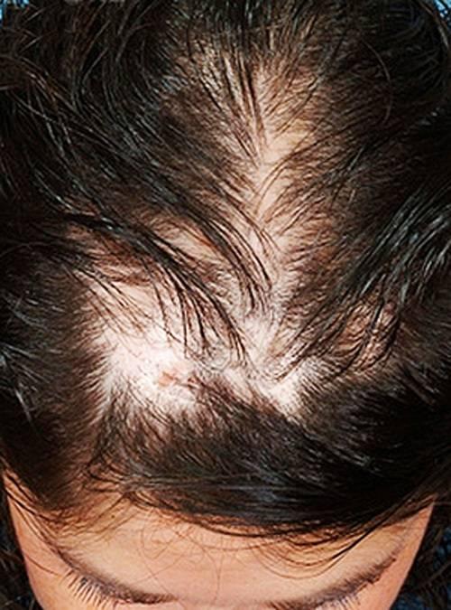 Алопеция у детей: что это такое? 34 фото почему выпадают волосы? лечение выпадения волос, очаговая и гнездная алопеция