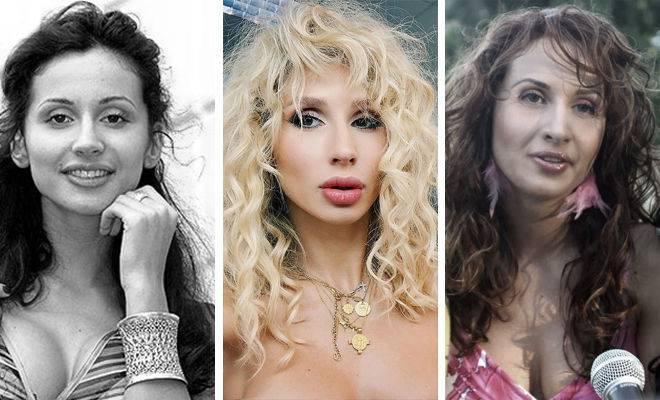 Знаменитости до и после пластики: 14 ярких примеров на фото
