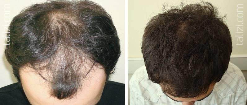 Алопеция (облысение): что делать если выпадают волосы? — net-bolezniam.ru