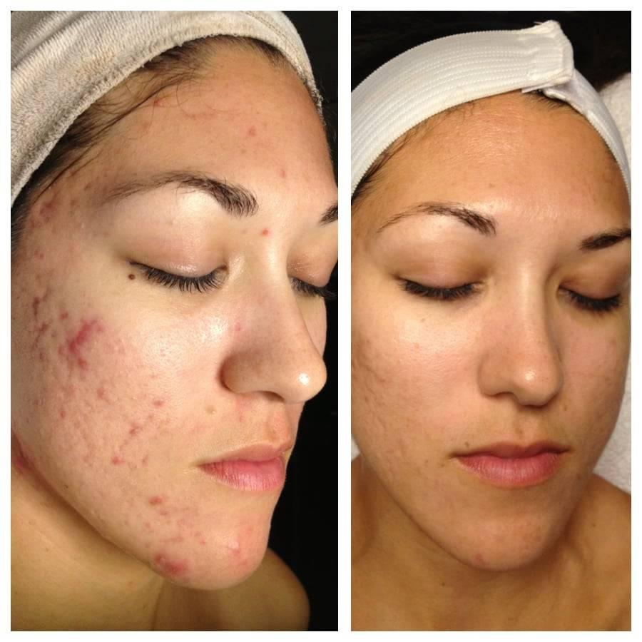 Для чего нужна профессиональная чистка лица у косметолога: все, что нужно знать о процедуре