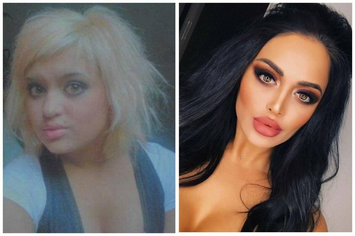 Пластика ниты кузьминой: какую девушка делала, результат до и после, фото в инстаграм