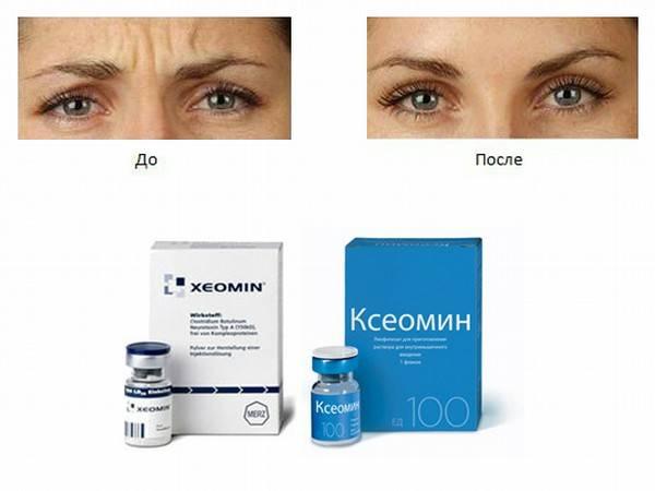 Ксеомин: тактика коррекции мимических морщин у пациентов со склонностью к отекам