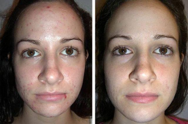 Ультразвуковой пилинг лица: все о процедуре