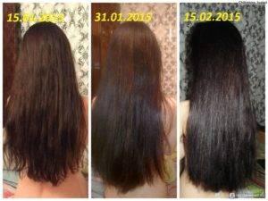 На сколько см растут волосы в месяц