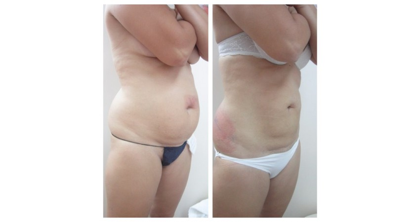 Криолиполиз для похудения – суть процедуры и отзывы