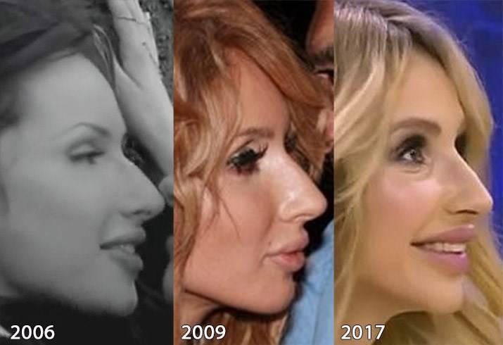 Лобода без макияжа и фотошопа, фото светланы лободы без грима до пластики и операций, новости и фото 2020