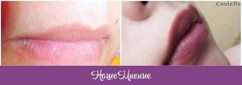 Как избавиться от усиков у женщин над верхней губой навсегда: 6 способов эпиляции усов в домашних условиях | qulady