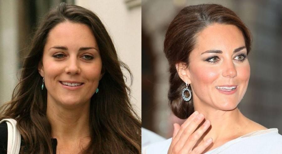 Кейт бекинсейл делала пластику? фото до и после