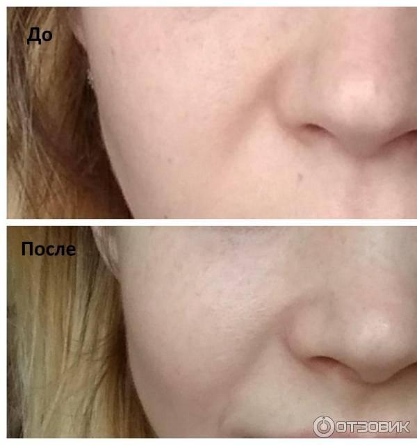 Ультразвуковой пилинг лица - отзывы клиентов, цены, видео, фото до и после процедуры