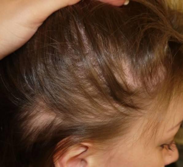 У ребенка выпадают волосы: причины и что делать