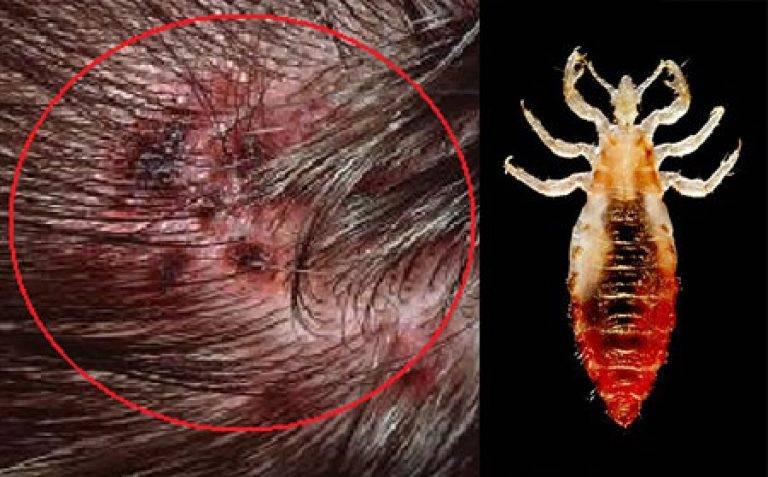 Как быстро размножаются вши на голове - педикулез инкубационный период