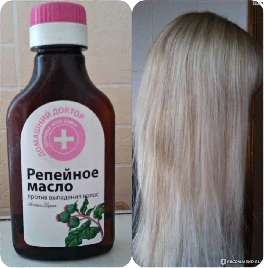 Как применять репейное масло от выпадения волос у мужчин и женщин
